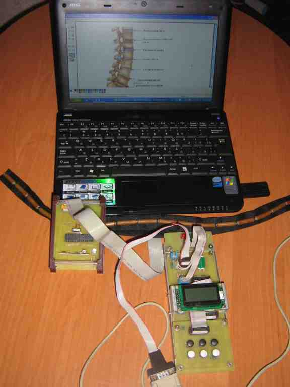 Equipment for diagnostics and therapy of spine and joints